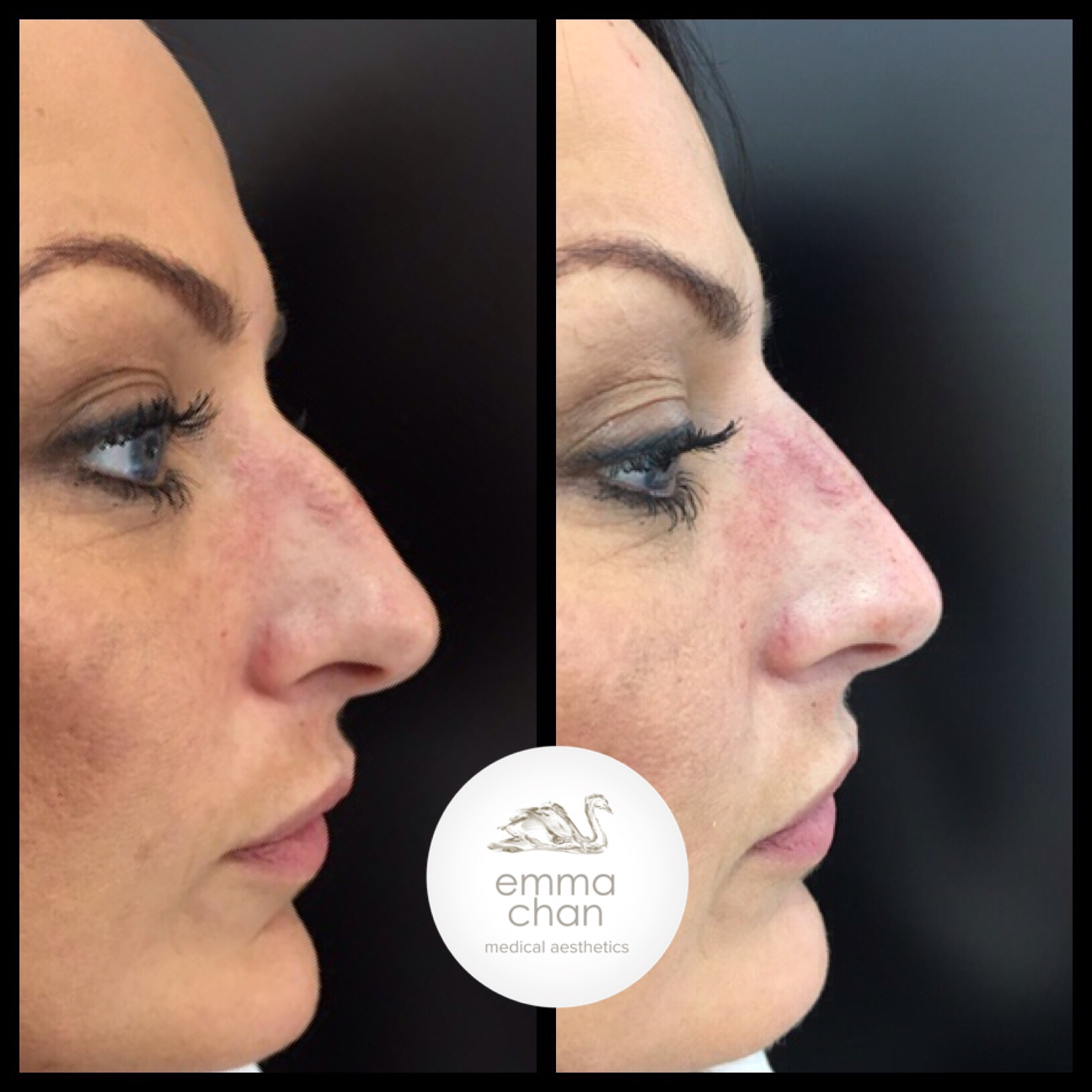 premium selection fcd3e 4eba0 Emma contributed towards an article in the August Issue of the Aesthetic  Journal about Non-Surgical Rhinoplasty.